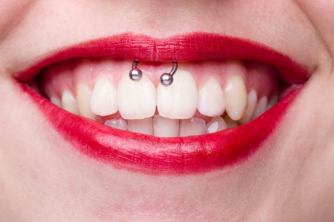 Smiley -  Lippenbändchenpiercing
